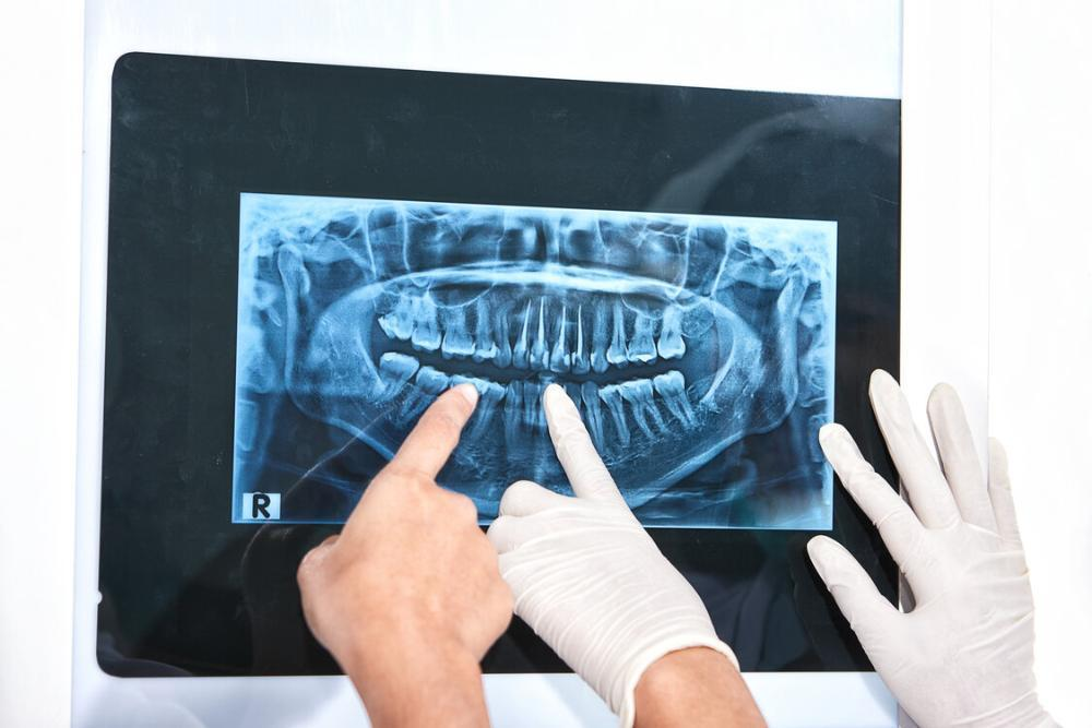 hands pointing at dental xray
